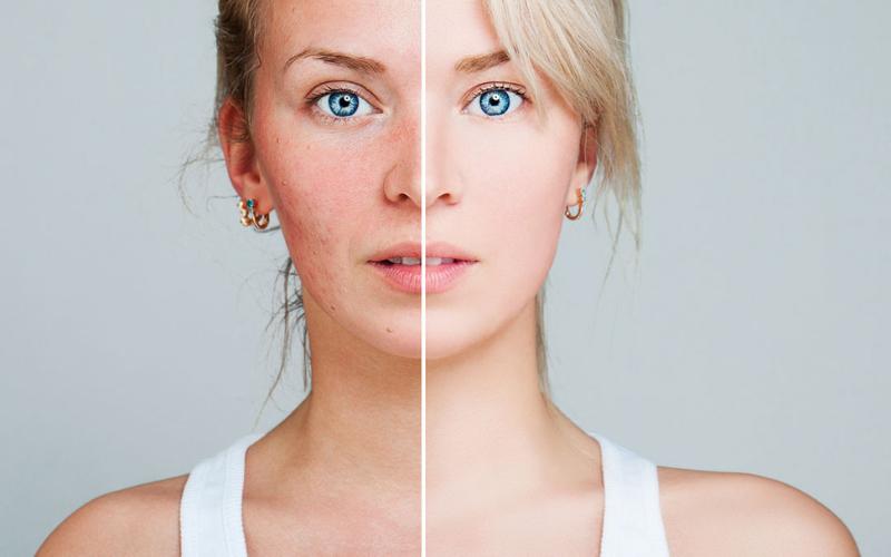 trądzik różowaty - przed i po